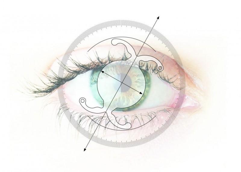 physiol ankoris premium torique astigmatisme astigmate implant cataracte plan dessin schéma