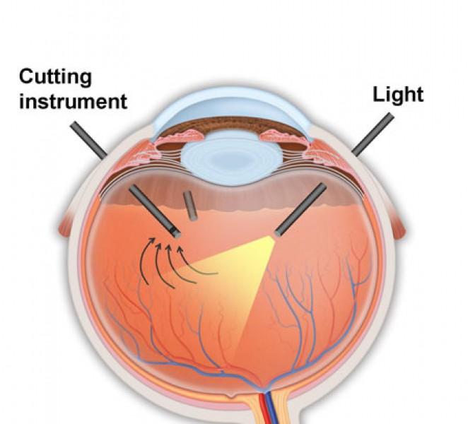 schema vitrectomie pars plana sans suture