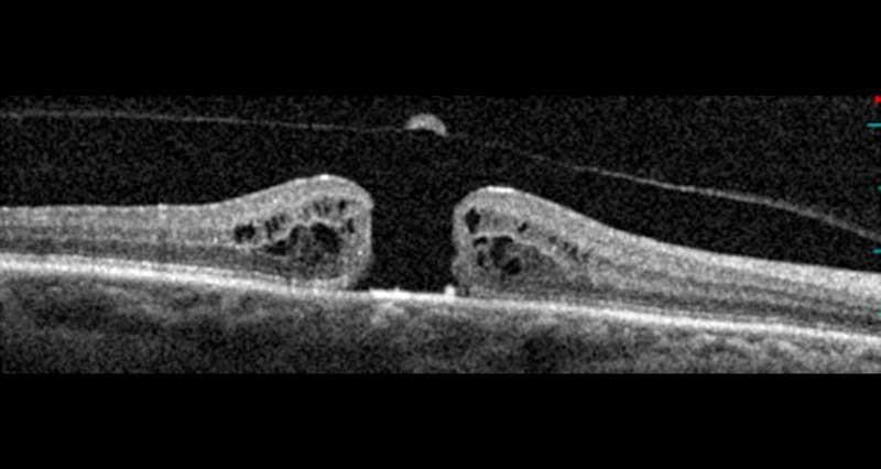 coupe OCT trou maculaire idiopathique pleine épaisseur vitre décollé opercule